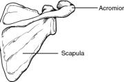 Acromioplasty