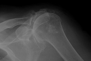 Milwaukee Shoulder Syndrome