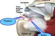 Rotator cuff strain