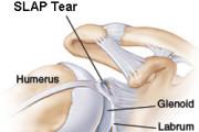 SLAP tear surgery