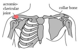 collarbone pain
