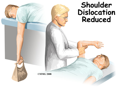 dislocated shoulder treatment