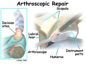labrum surgery