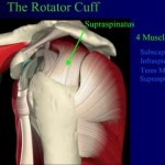 Partial Rotator Cuff Tear