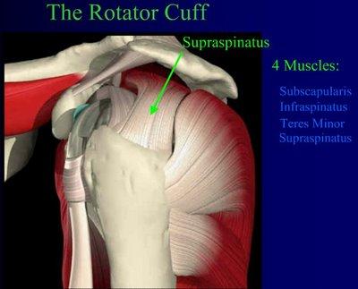 partial rotator cuff tear