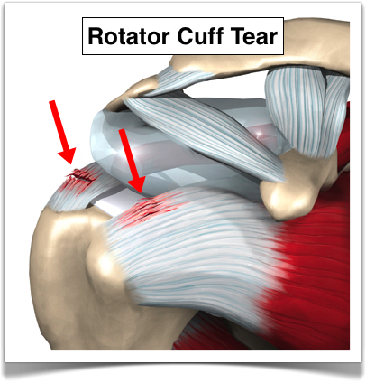 Rotator Cuff Injury &#...