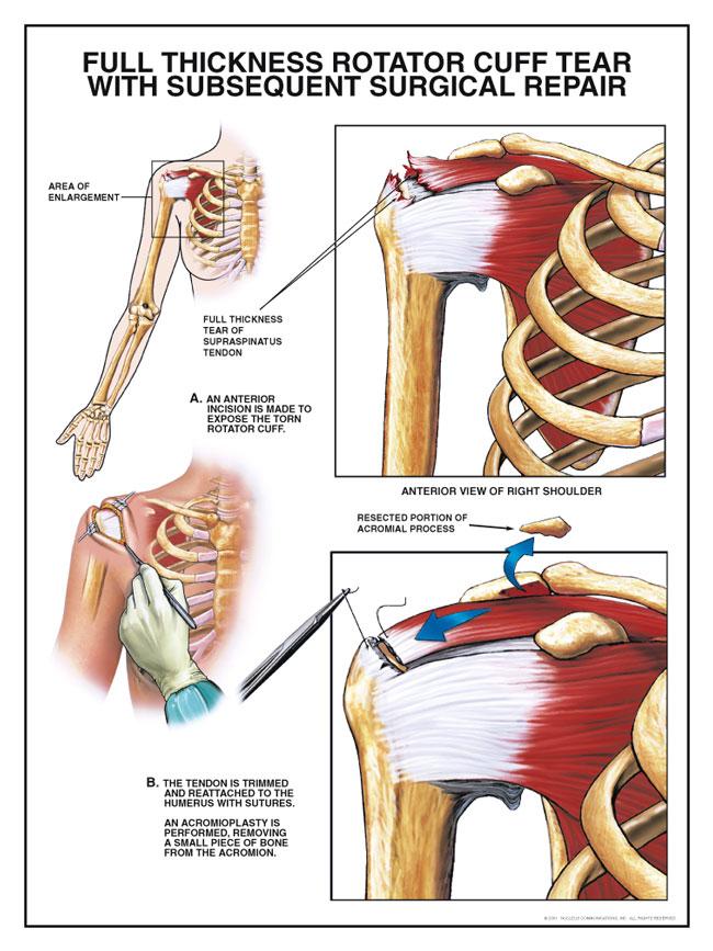 Rotator Cuff Tear « Injured Shoulder