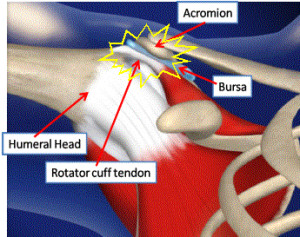 shoulder impingement surgery