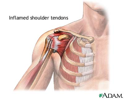 Болят плечевые суставы или мышцы причины лечение