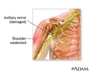 shoulder nerve pain