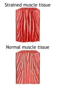 shoulder strain