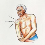 shoulder sublaxation