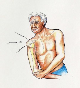 shoulder subluxation