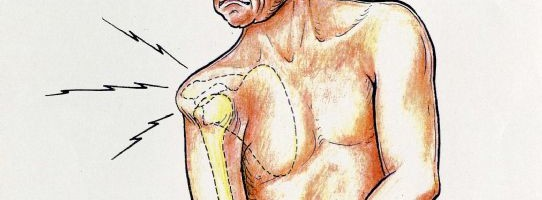 shoulder sublaxation