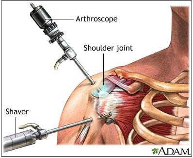 Shoulder Tear Surgery
