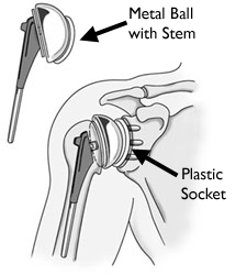 prothesis shoulder replacement